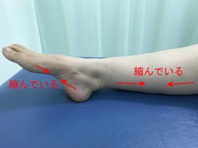 足底腱膜炎 夜間の足の肢位