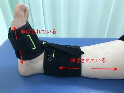 足底腱膜炎 ナイトブレース【金沢市のアルコット接骨院】