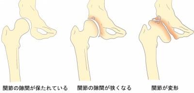 変形性股関節症の進行画像