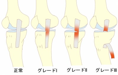 膝内側側副靭帯損傷グレード