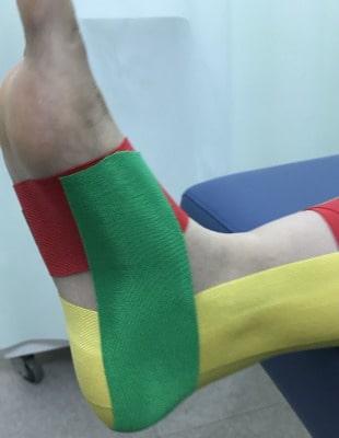 衝突性外骨腫に対するテーピング②