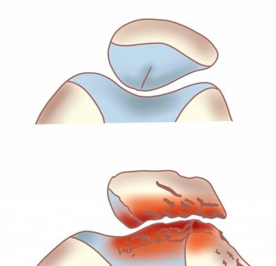 膝蓋骨の変形