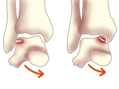 距骨骨軟骨損傷の受傷機転