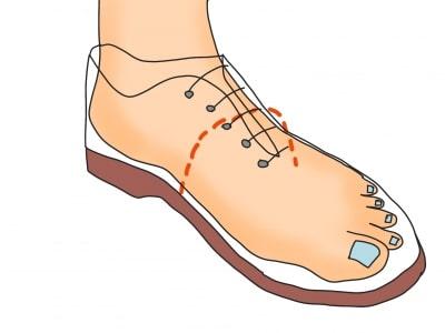 靴ひもによる横アーチを作る方法