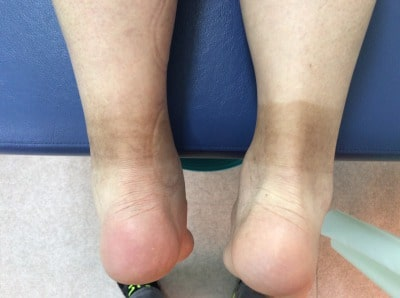 アキレス腱周囲炎(左右のアキレス腱の太さの違い)