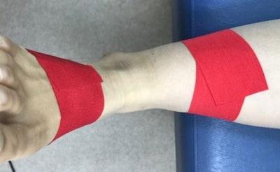 足関節捻挫テーピングアンカー【金沢市のアルコット接骨院の疾患解説】