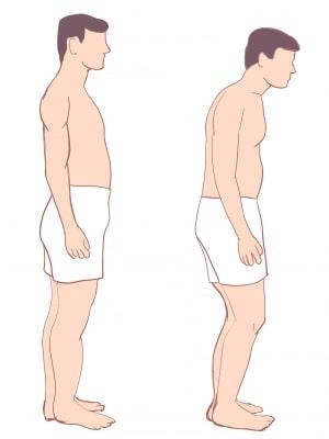 強直性脊椎炎姿勢の変化