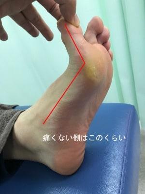 種子骨障害のテーピング法【金沢市のアルコット接骨院】