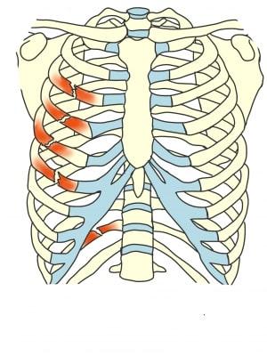肋骨骨折とは
