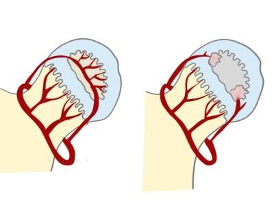 ペルテス病骨頭の血流