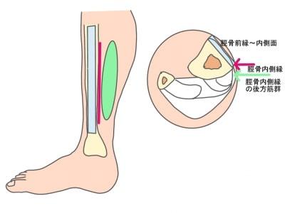 シンスプリント痛みの部位