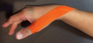 ボウリングによる親指の痛みに対するテーピング
