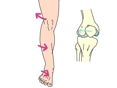 膝蓋骨が外側へ不安定な理由
