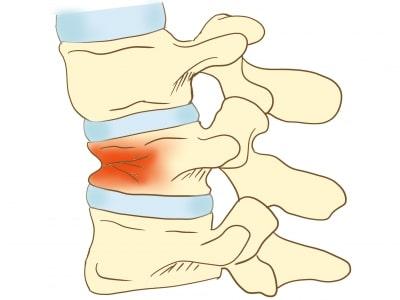 腰椎圧迫骨折画像