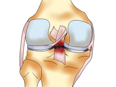 後十字靭帯損傷