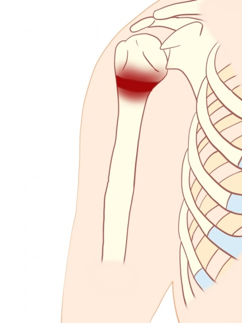 上腕骨の骨端線損傷