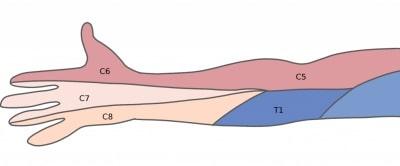 頚椎症手のしびれの部位