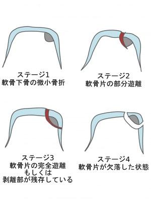 距骨骨軟骨損傷ステージ分類