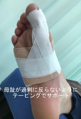 種子骨障害テーピング【金沢市のアルコット接骨院】