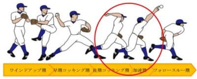 野球肘の痛いフェーズ