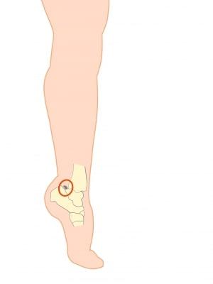 足関節後方インピンジメント症候群【金沢市のアルコット接骨院の疾患解説】