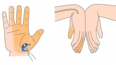 手根管症候群チネルサインとファーレンテスト