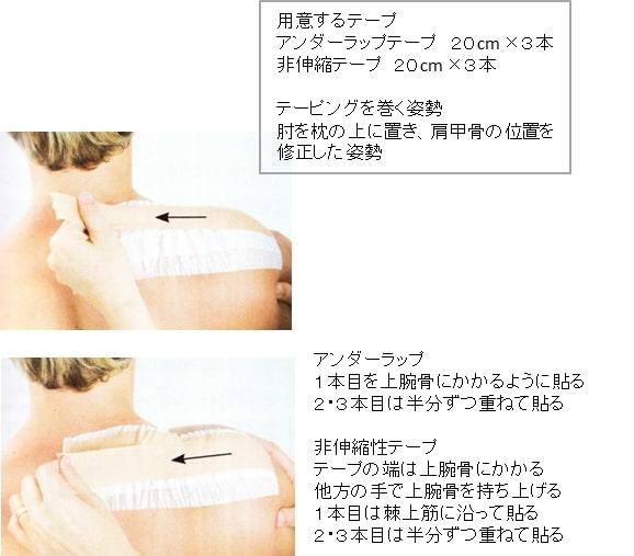 胸郭出口症候群テーピング