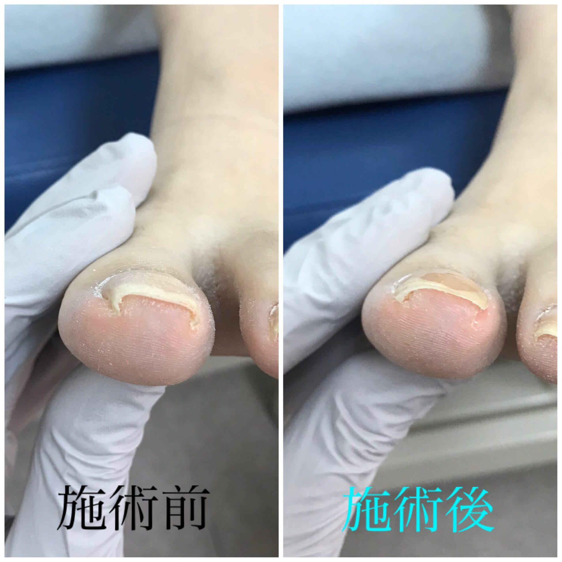 巻き爪症例紹介vol.5 ホッチキス型の巻き爪【金沢市巻き爪補正アルコット】
