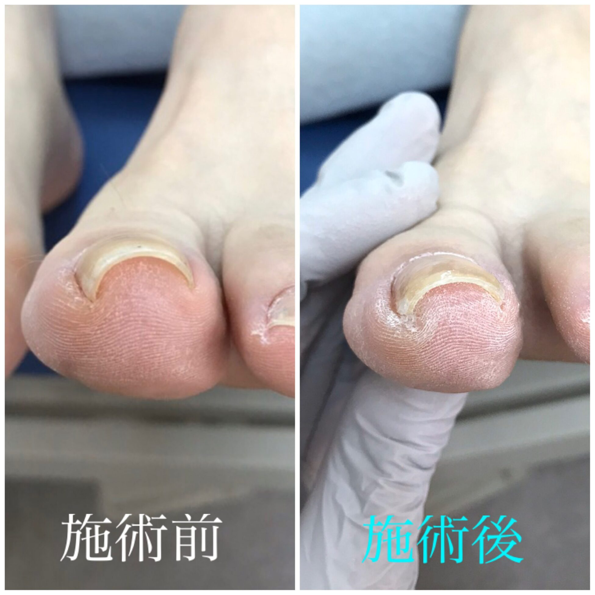 【金沢巻き爪】症例vol.22 軽い巻き爪でも痛みが強い