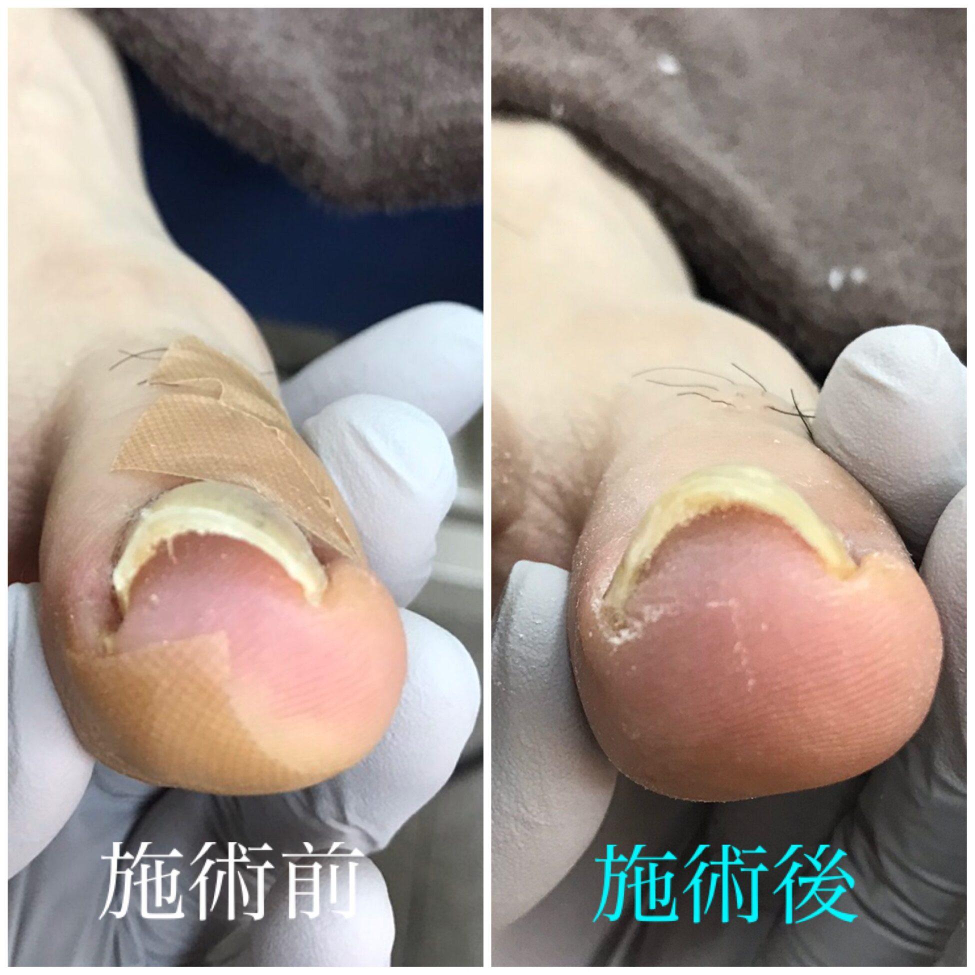 【金沢巻き爪】症例vol.24①靴による巻き爪 ②歪んだ爪