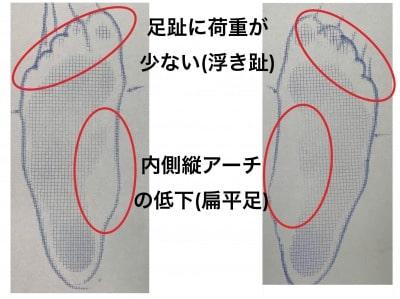 浮き趾と巻き爪の関係