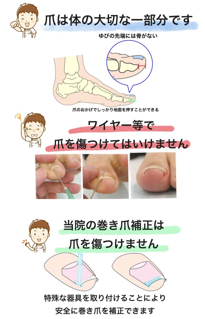 当院の巻き爪補正は爪を傷つけません