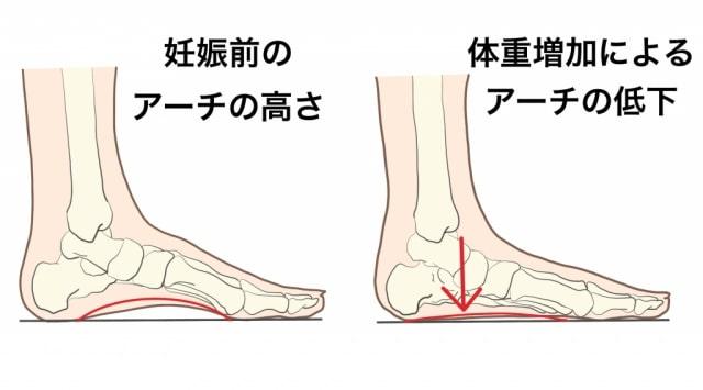 体重増加による足のアーチの低下