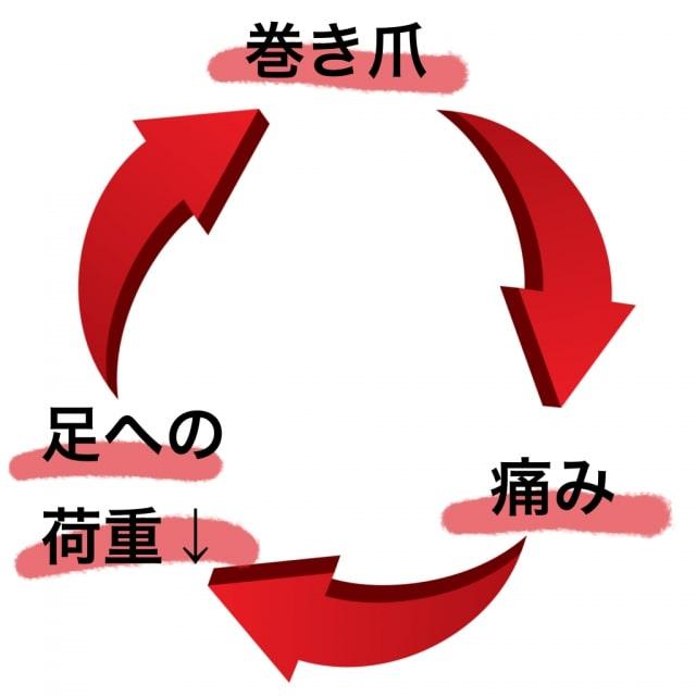 巻き爪の悪循環【金沢巻き爪】