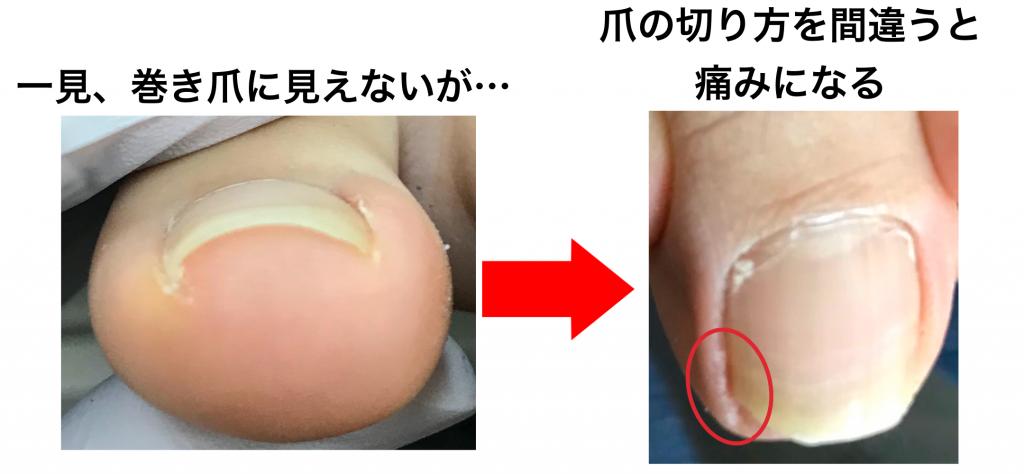 間違った爪切りによって痛みを起こすことも。