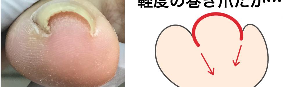 軽度の巻き爪のベクトル