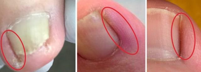 巻き爪炎症