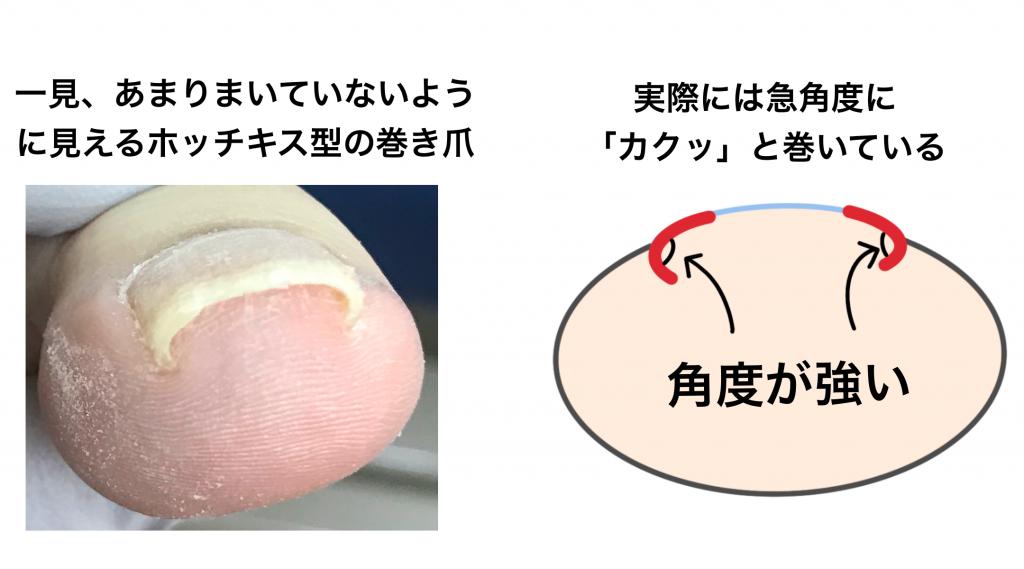 ホッチキス型の巻き爪