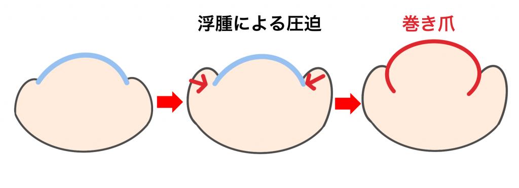 浮腫による巻き爪