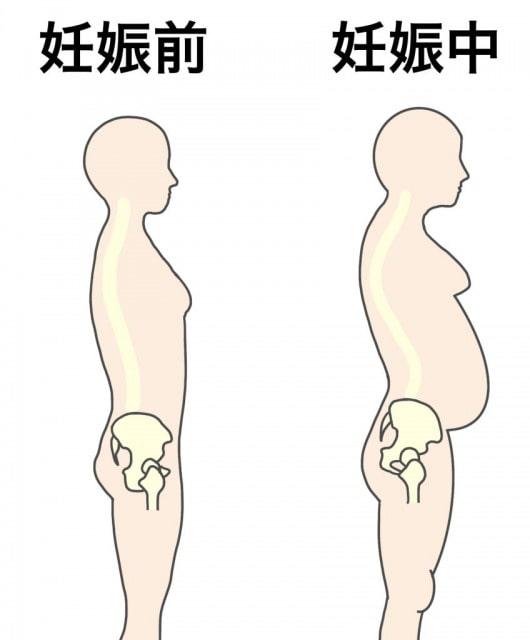 妊娠と巻き爪の関係