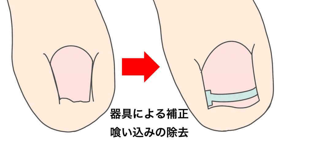 巻き爪の手術後の再発に対する補正