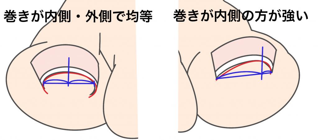 巻き爪金沢