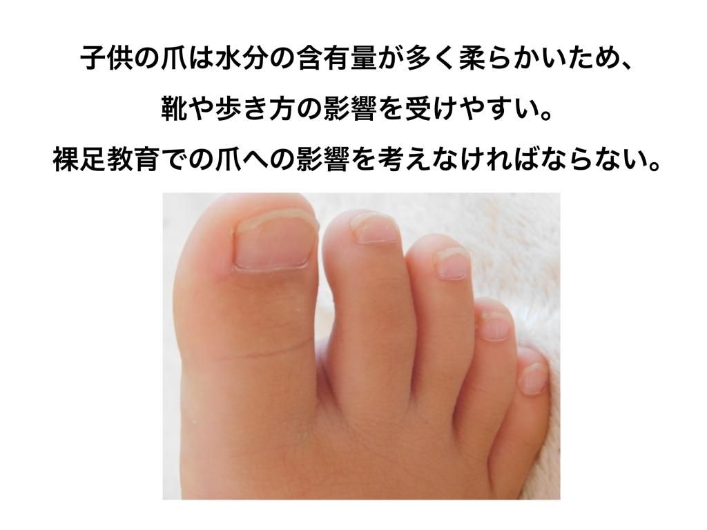 子供の巻き爪