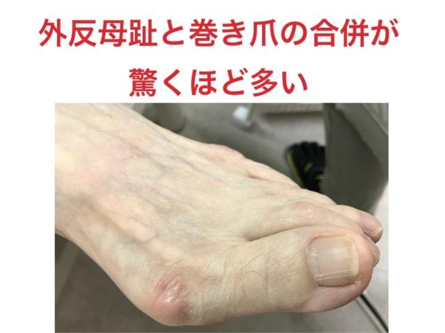 外反母趾と巻き爪の合併
