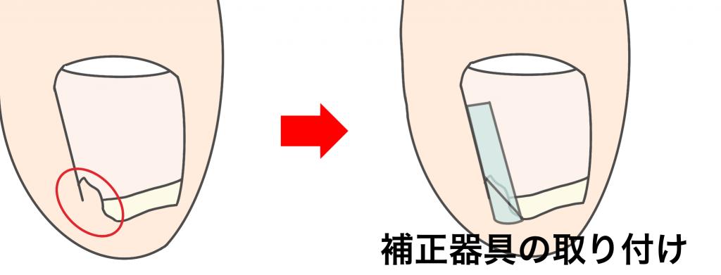 深爪の補正