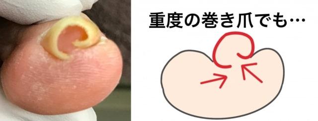 重度巻き爪のベクトル