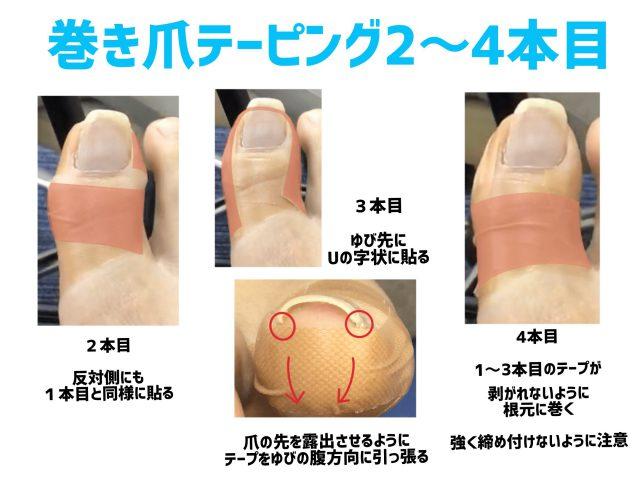 【金沢巻き爪】巻き爪テーピング2〜4本目