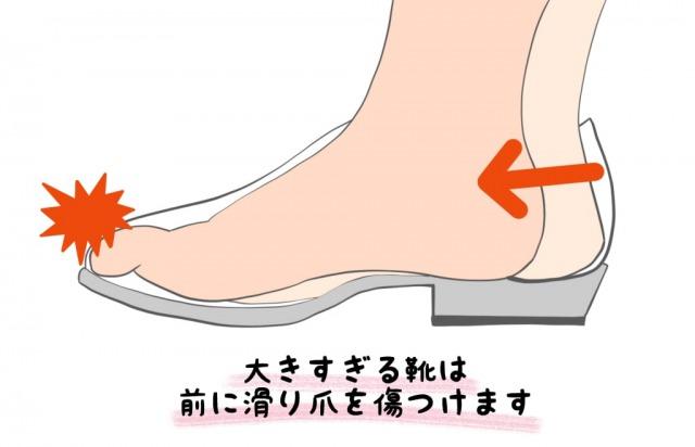 巻き爪の原因(靴との衝突)