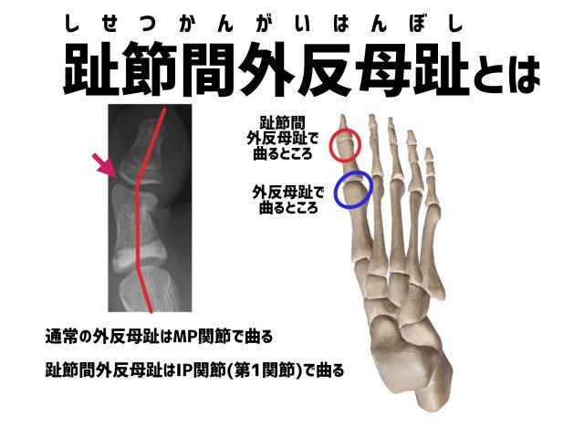 趾節間外反母趾とは