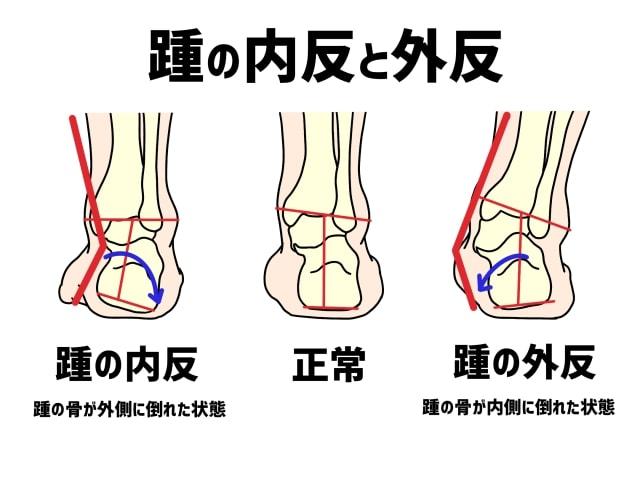 足関節外反・内反と巻き爪の関係